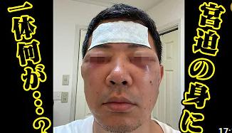 【画像】宮迫博之の整形ビフォーアフター徹底比較!目のクマ除去で顔変わった!